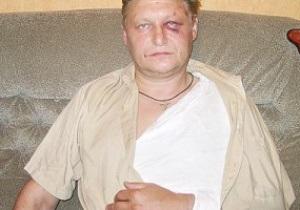 Избитый на стадионе Динамо рассказал, что он делал у сектора Карпат