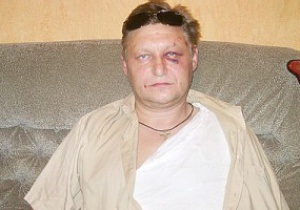 Избитый водитель Динамо рассказал свою версию произошедшего