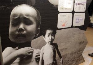 Мільярд людей у світі голодують - ООН