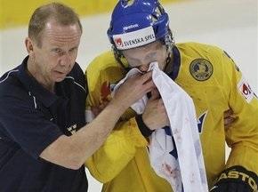 ЧМ-2009: Латвийский хоккеист сломал челюсть шведскому защитнику