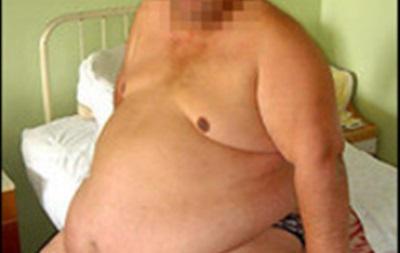 Новосибірські хірурги прооперували 270-кілограмового пацієнта