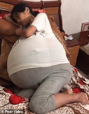 У китаянки неожиданно вырос 20-килограммовый живот. ФОТО