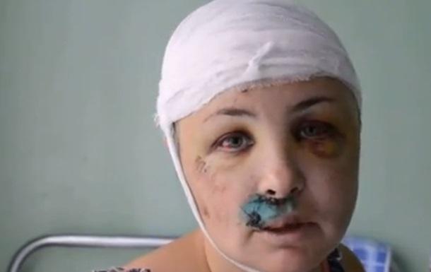 Крашкова получила вторую группу инвалидности