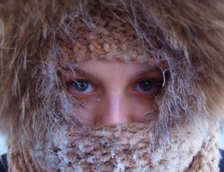 Обращение в связи с холодами