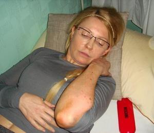 У Тимошенко подозрение на застарелый сифилис