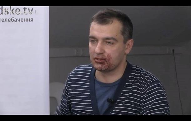 Столичная милиция начала следствие по факту нападения на журналиста в Мариинском парке
