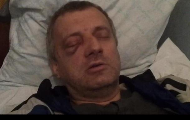В Харькове в ходе форума Евромайданов пострадал активист