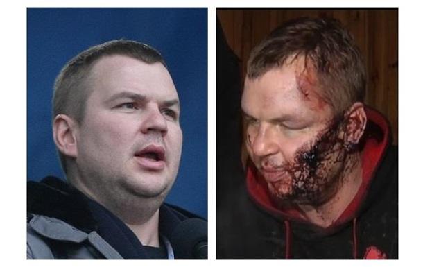 Покалеченный Булатов. Фото активиста Автомайдана до и после похищения