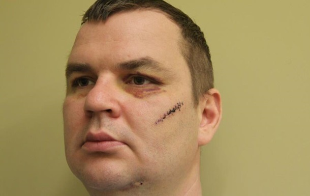 Булатов заявляет, что неизвестные угрожают отрезать уши его детям