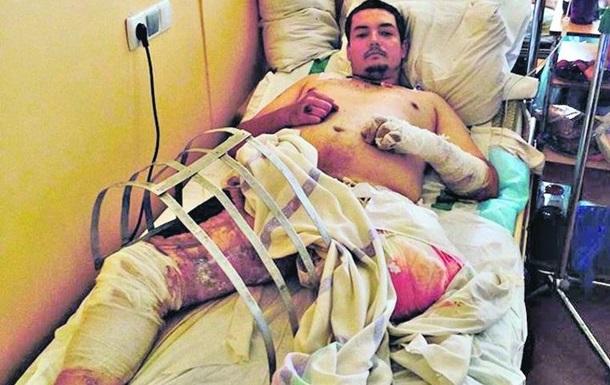 Война уже в Киеве - в центральном военном госпитале, куда свозят молодых парней
