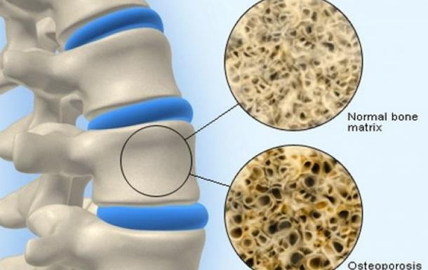 Остеопороз - скрытая угроза
