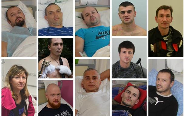 Проект «Биотех-реабилитация раненых»: первые 12 человек на лечении