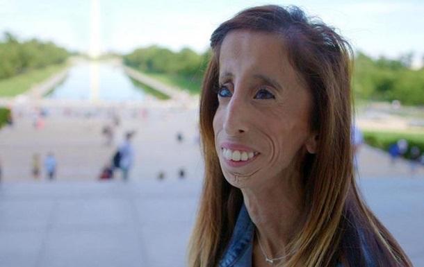 Самая некрасивая девушка  сняла документальный фильм о своей жизни