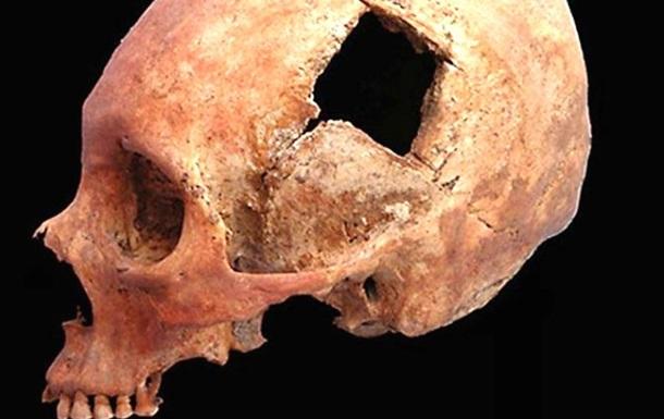 Трепанацію черепа вміли робити близько 5 тисяч років тому - дослідження
