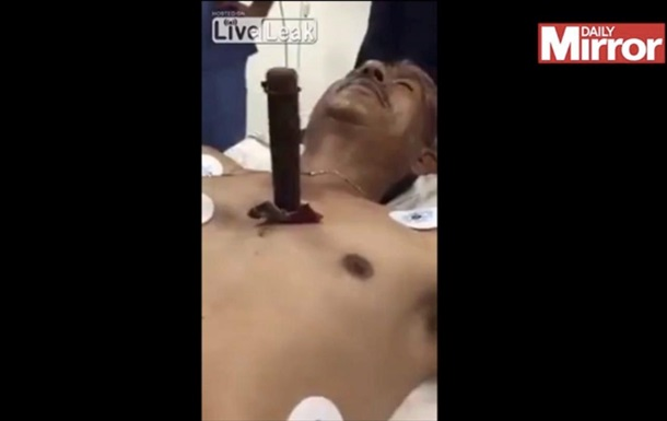 Пользователей шокировало видео спасения мужчины с застрявшим в груди ножом