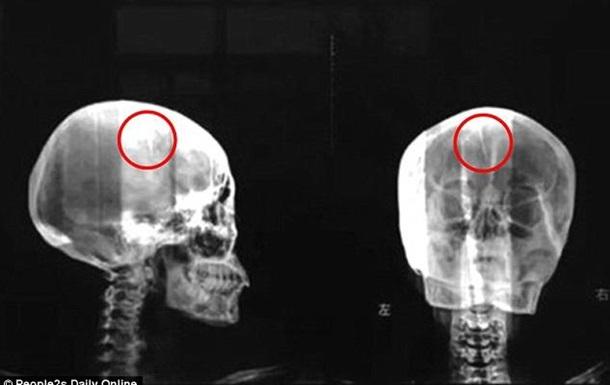 Китаянка 46 лет прожила с 4,5-сантиметровой иглой в мозгу