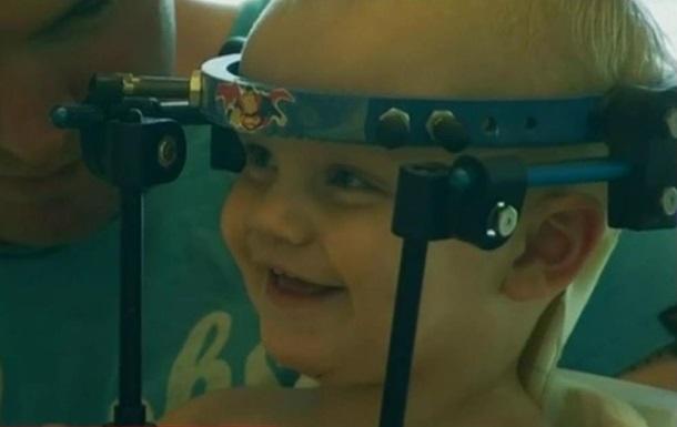 Пострадавшему в аварии ребенку  присоединили  голову