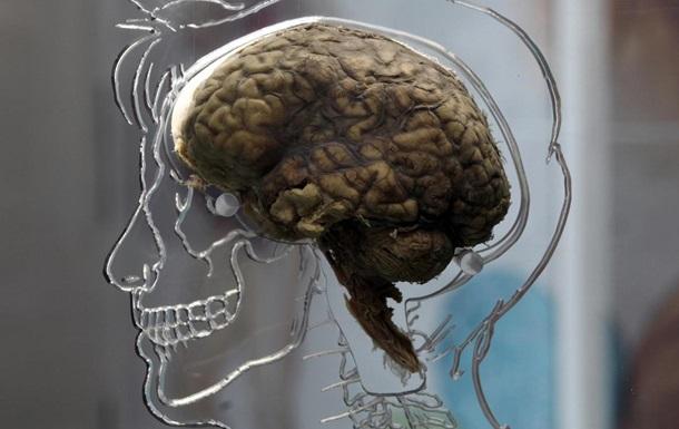 Ученые объяснили, почему  мужской  мозг зарабатывает больше