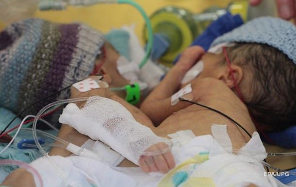 В Швейцарии успешно разделили сиамских близнецов-девочек
