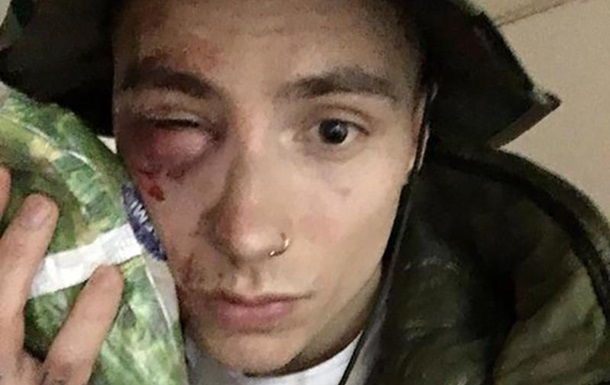 В Киеве избили участника группы Quest Pistols