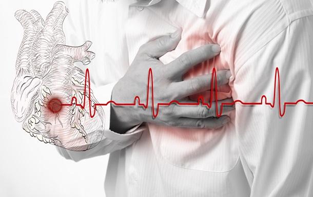 Медики знайшли спосіб захистити чоловіків від інфаркту