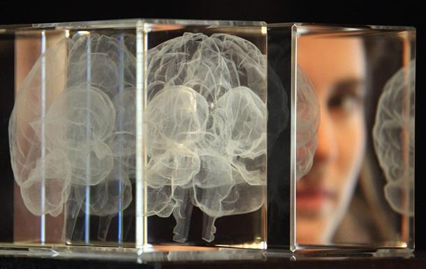 Вчені знайшли різницю між чоловічим і жіночим мозком