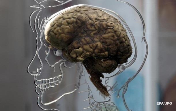 Великобритания подарила Бельгии три тысячи мозгов психически больных людей