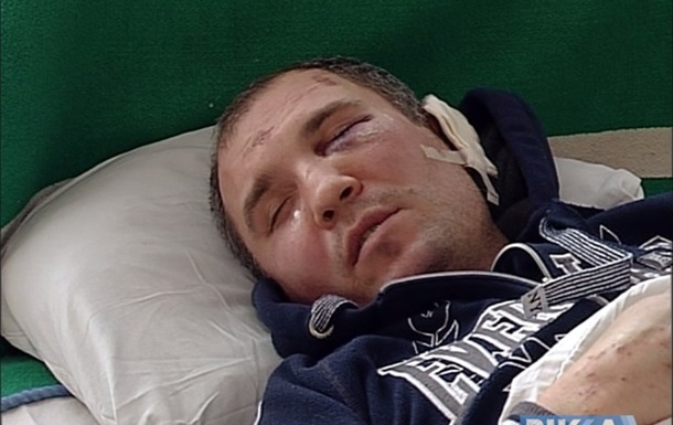 В Черкассах нетрезвые копы избили человека