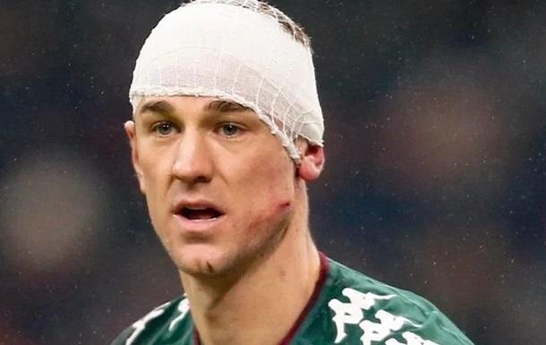 У матчі Кубка Італії воротар отримав шипами по обличчю