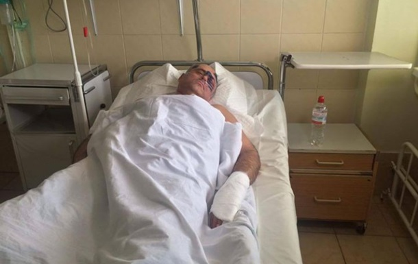 Опоблок заявив про побиття голови райради в Одеській області