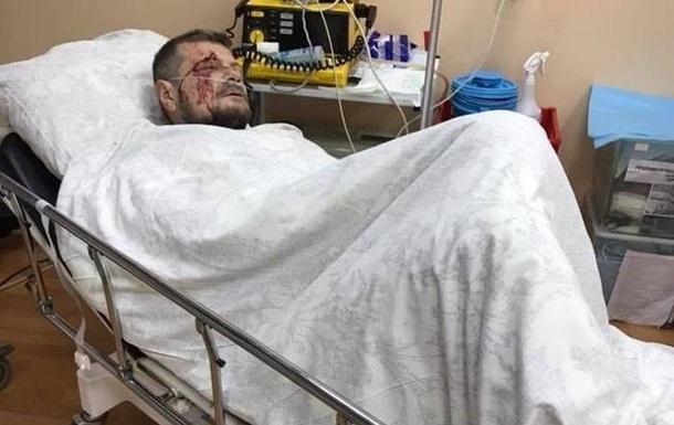 Покушение на Мосийчука: нардеп дал СБУ показания
