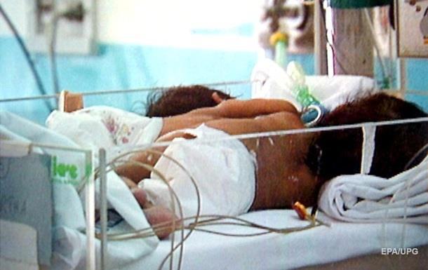 В Індії народилися рідкісні сіамські близнюки