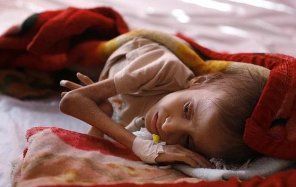 В Ємені 130 дітей щодня помирають від голоду та хвороб - Save the Children