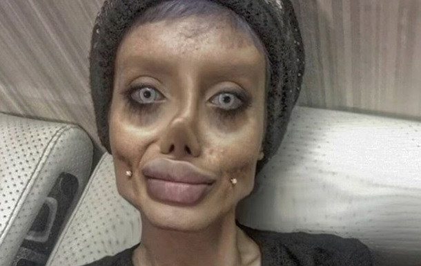 Як Джолі: дівчина знівечила обличчя пластикою