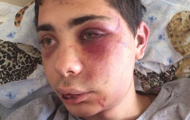 Охоронці нічного клубу в Сумах жорстоко побили відвідувачів