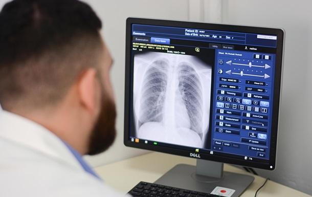 Toshiba Medical передала медобладнання обласним лікарням України