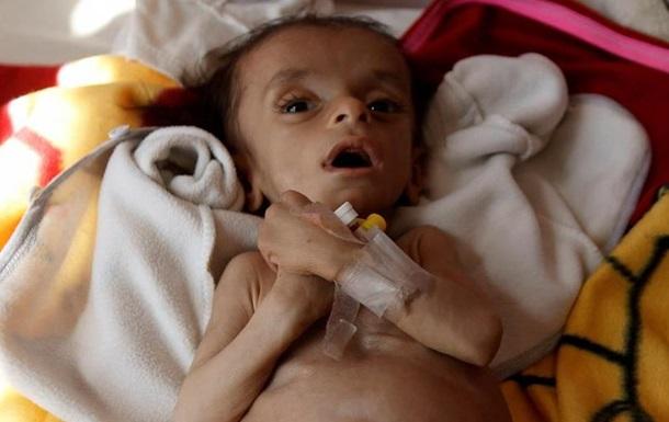 ЮНІСЕФ заявляє про катастрофічні умови життя дітей у Ємені