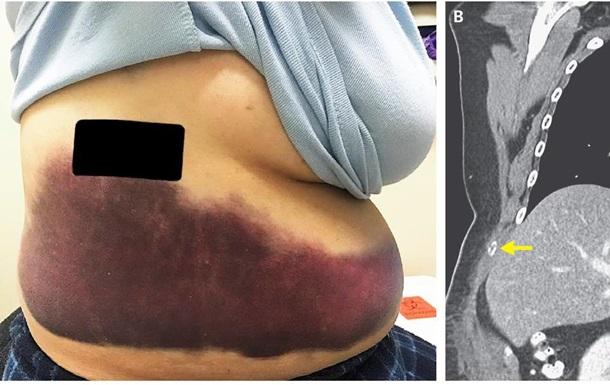 Американка зламала ребро під час нападу кашлю