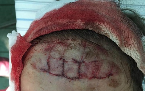 Инцидент в аквапарке Киева: на лоб ребенка наложили 34 шва