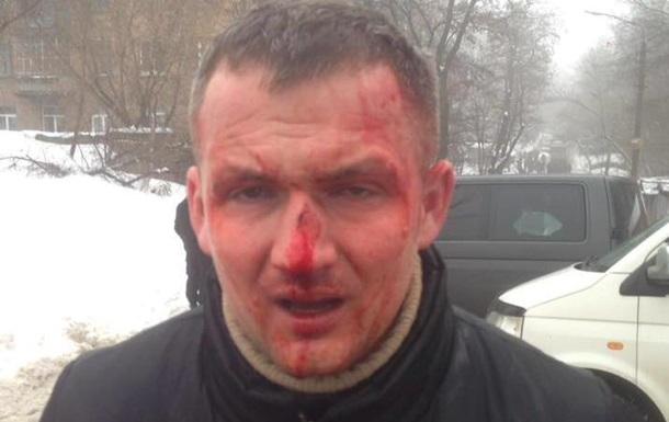 В Киеве избили нардепа