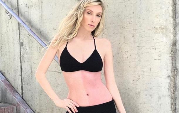 Девушка с гигантским родимым пятном стала моделью
