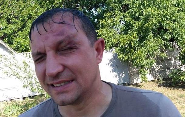 У Кривому Розі напали на депутата міськради