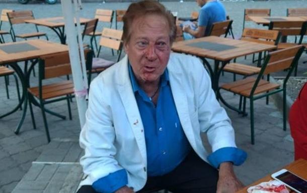 В Одессе напали на американского певца
