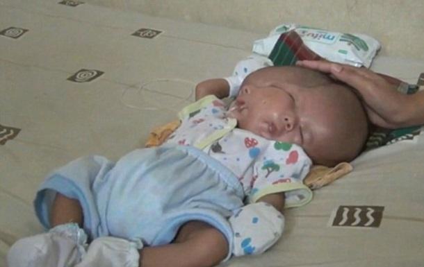 В Індонезії народилася дитина з двома обличчями
