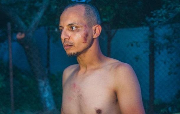 У Києві потрапив у ДТП п яний єгиптянин на румунському BMW
