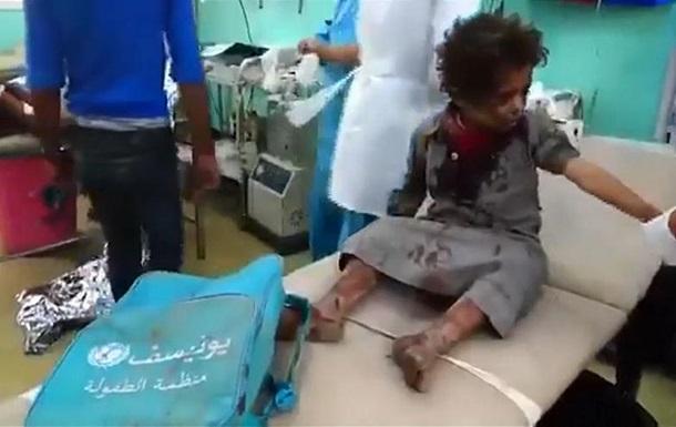 В Йемене авиация обстреляла автобус с детьми: 39 погибших