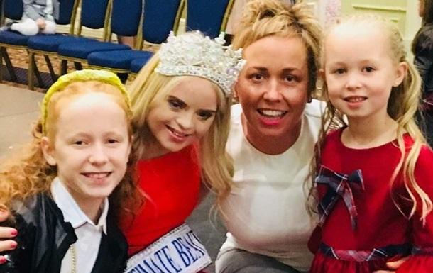 Модель з синдромом Дауна виграла в Британії конкурс краси