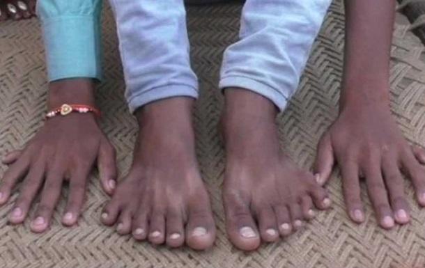 В Індії шестипалого хлопчика хочуть принести в жертву