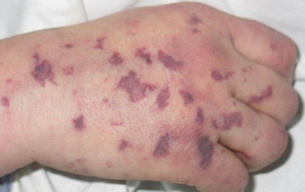 На Закарпатті через 11 хворих на менінгокок оголосили карантин
