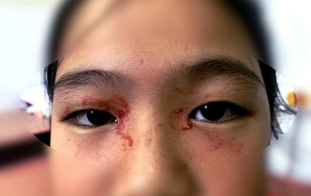 Во Вьетнаме школьница покрылась кровавым потом